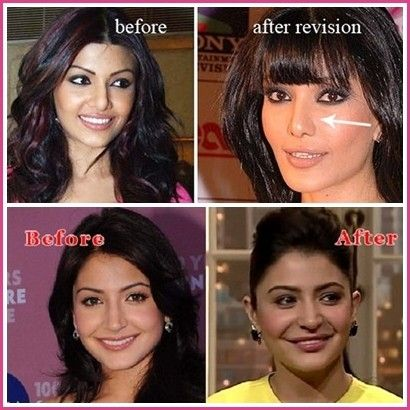 Bollywood Celebrities Before After Cosmetic Surgery Cosmetic Surgery Plastic Surgery Bollywood Celebrities