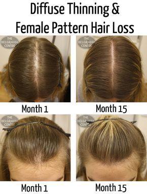 Love Your Locks All The Best Hair Regrowth Women Remedies Hair