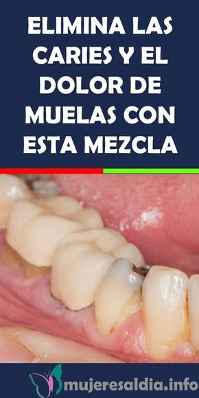 Elimina Las Caries Y El Dolor De Muelas Con Esta Mezcla Elimina Caries Dolor De Muelas Remedios Bienestar Salud Dental Health Dental Free To Use Images