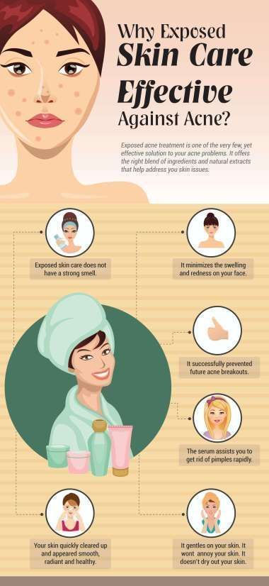 Every Day Makeup Causing You Break Outs Here Are 10 Simple Tips To Help You Have The Clear And Beautiful Skin You Want Acne Treatment Acne Exposed Skin Care