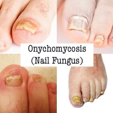 Click To See A Complete Photo Gallery Of Toenails Before And After Laser Treatment