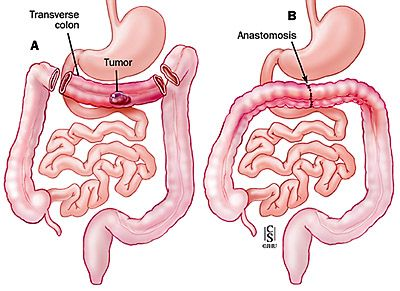 Stage III Colorectal Surgery- Tranverse colectomy | Tools for Work