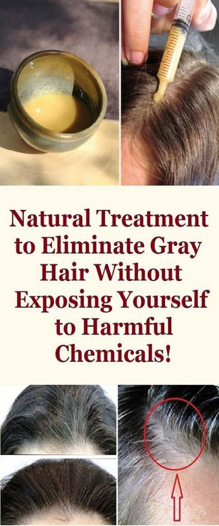 How To Eliminate Grey Hair Naturally idea gallery