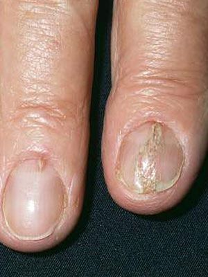 When Nails Grow Into The Skin Instead Of Straight An Ingrown Nail Occurs This Painful Toenail In 2020 Nail Fungus Cure Toenail Fungus Treatment Nail Fungus Treatment