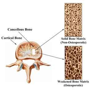 11++ Is osteoporosis a disability uk information