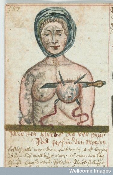 Old medical drawing of a mastectomy.