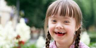 Fresh Smile Friday In 2020 Down Syndrome Kids Down Syndrome Special Needs Kids