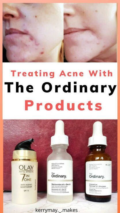 Treating Acne With The Ordinary Skincare Products The Ordinary Skincare Routine The Ordinary Products Skin Care Acne