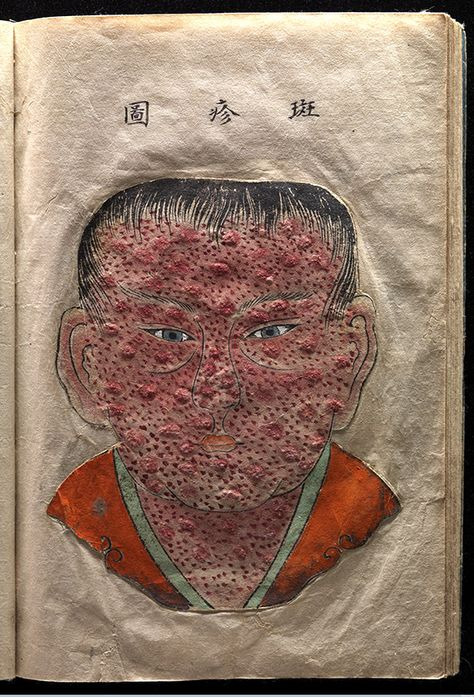 Photographs of Eradicated Diseases and Antiquated Treatments History or Just Horror? Historical archives of medical ailments and treatments, history or horror?Historical archives of medical ailments and treatments, history or horror?
