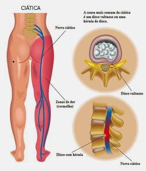 Dores No Nervo Ciatico Faca Massagem Massoterapia Quiropraxia