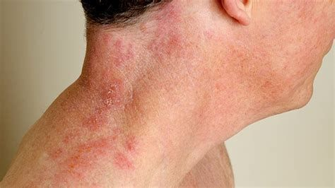 Pin On Herpes Treatments