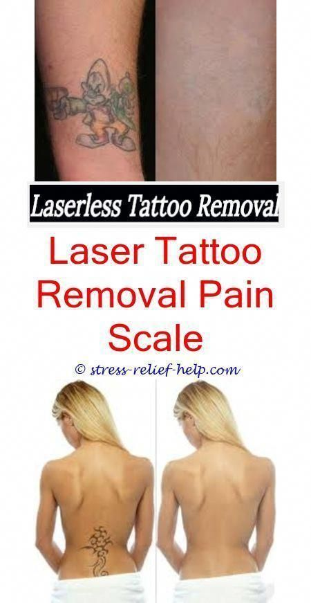 Cosmetic Tattoo Removal Small Tattoo Removal Before And After Can You Do Laser Hair Removal Over Tattoos Cosmetic Tattoo Eyebrow Tattoo Removal Laser Tattoo