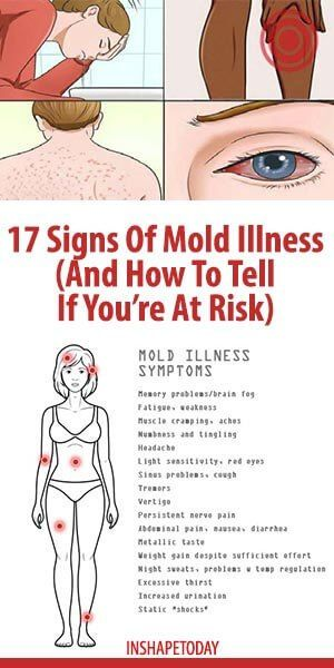 17 Signs Of Mold Illness And How To Tell If You Re At Risk Inshapetoday