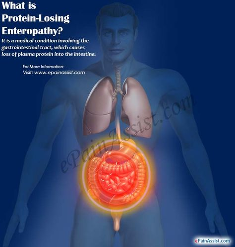 polymyalgia rheumatica återhämtning