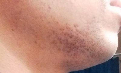 Improve Your Skin With These Great Tips Ingrown Hair Scar