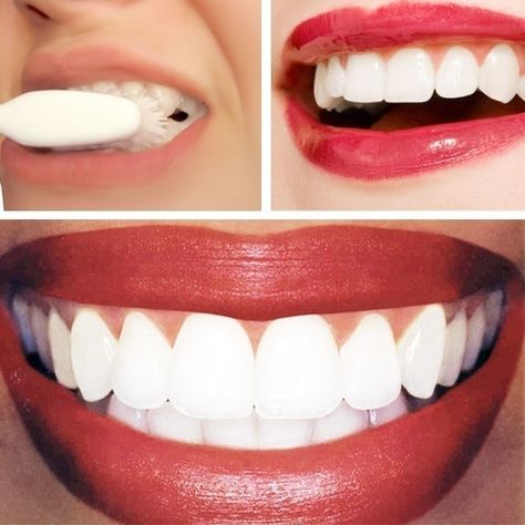 Dr. Oz Teeth Whitening Home Remedy:  1/4 cup of baking soda   lemon juice from half of a lemon. Apply with cotton ball or q-tip. Leave on for no longer than 1 minute, then brush teeth to remove. Wow! That's white!