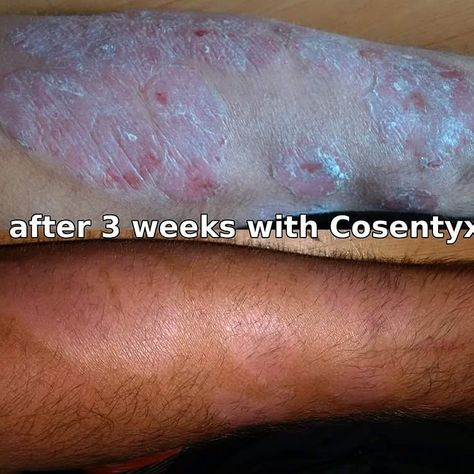 Some of the severe side effects of Cosentyx include: Many suffer with feelings of joy and happiness. Sometimes elated feeling encourage you to participate in life. Beware of wanting to jump in th...