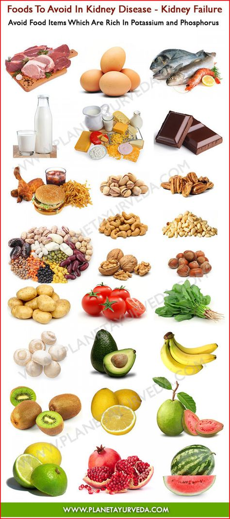 NaturalOn E-Newsletter, 7/22/2014 12:01 PM : Foods To Avoid In Kidney Disease Infographic