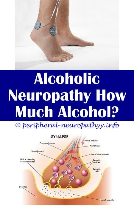 What Are The Symptoms Of Peripheral Neuropathy Alcoholic Neuropathy Mayo Clinic Postherpetic Neuropathy From Shingles Foods Bad For Neuropathy Migraine Neuropat Trong 2020