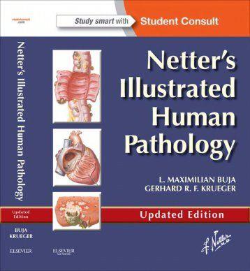 Netter 039 S Illustrated Human Pathology 2e Marvin S