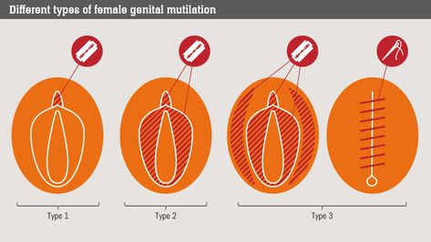 female genital mutilation a violation of human rights political  female genital mutilation a violation of human rights political sciences political science