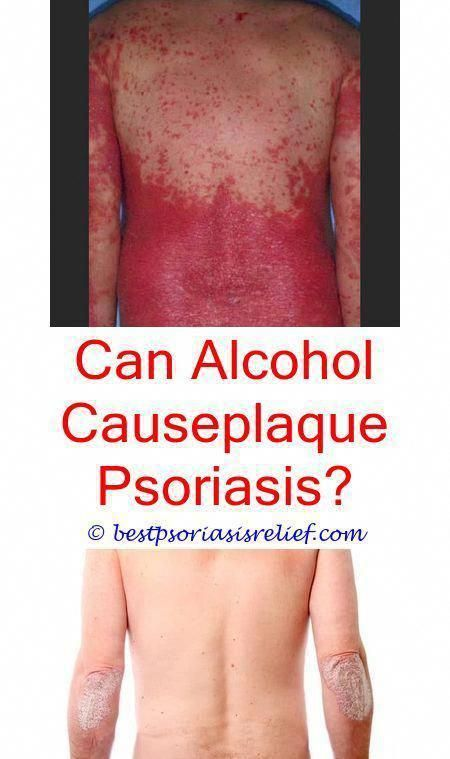 erythrodermicpsoriasis psoriasis blood sugar levels - a review of