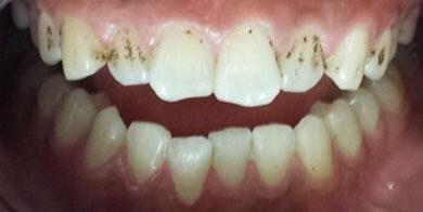 1932fe770ec1f1a2cb9e61677cb6022d - How To Get Rid Of Black Stains On Your Teeth