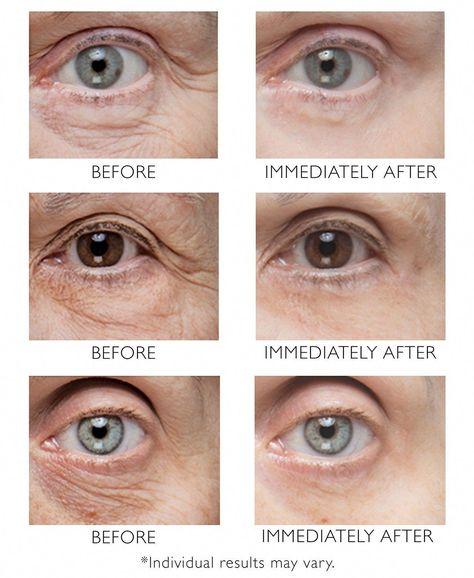 Peter Thomas Roth, Brown Spots On Skin, Spots On Face, Brown Skin, Skin Spots, Under Eye Wrinkles, Under Eye Puffiness, Wrinkles On Face, Tighten Under Eye Skin