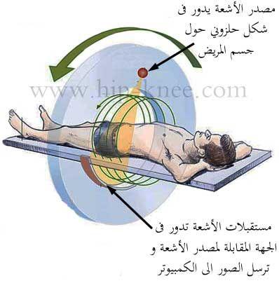 نتيجة بحث الصور عن الفرق بين اشعة الفا وبيتا وجاما X Ray Images X Ray Image