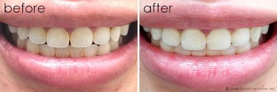 Crest 3d White Whitestrips With Light Christina Truong Crest
