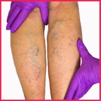 dureri la ambele picioare noaptea ce pot folosi pentru a acoperi venele păianjenului de pe picioare