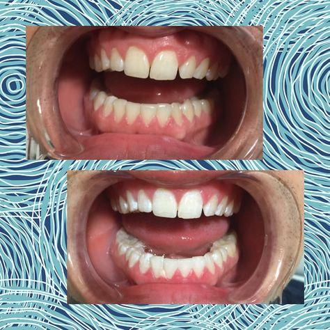 13 Best Teeth Whitening images | Teeth Whitening, Tooth bleaching