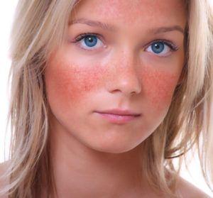 هل تعاني من مرض جلدي يسمى الوردية هل غالبا ما يحمر وجهك بسهولة مقارنة مع الآخرين هل الاحمرار محصور على الأنف والخدين ثم على الجبين والذقن Derma Roller Roller