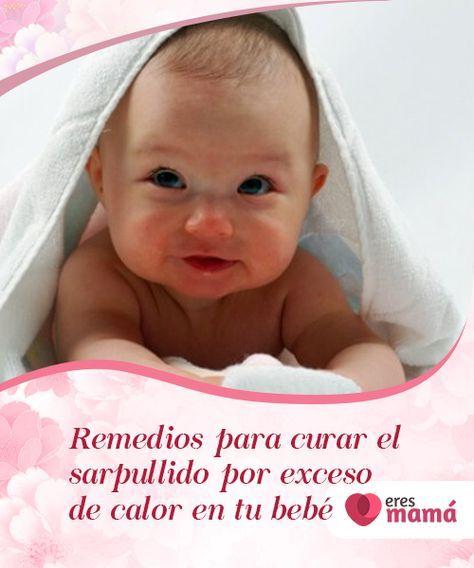 remedios naturales para el sarpullido por calor en bebés