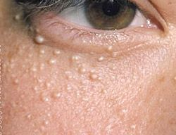 How To Get Rid Of Spot Lump Under Skin