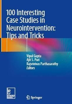 100 Interesting Case Studies In Neurointervention Tips And Tricks 1st Edition Mebooksfree Net Case Study Study Tips