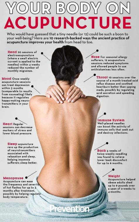 With #Chiari #Malformation we definitely need to improve our health in all ways, in order to minimize our experience of pain and other discomforts. Acupuncture treats your whole body, watering the roots in order to nourish the rest of the tree... Fertility boost may also be associated with acupuncture.