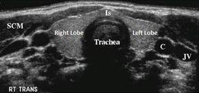 Normal Thyroid Ultrasound Image Thyroid Ultrasound Ultrasound