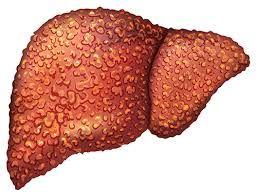 ما هو تليف الكبد يعد تليف الكبد Liver Cirrhosis أحد أمراض الكبد الخطيرة والتي ت فقد الكبد قدرته على القيام بوظ Cirrhosis Digestive Health Cardio Support