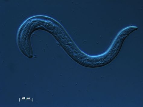 10 Best Phylum Nematoda Images On Pinterest Worms Ap Biology And