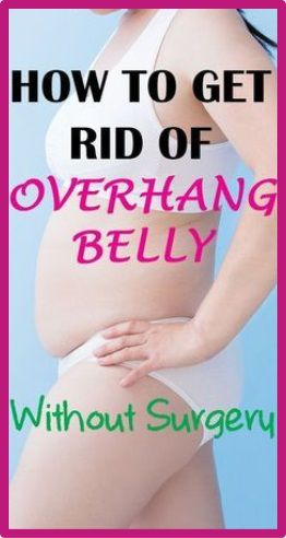 How To Get Rid Of Belly Fat After Surgery
