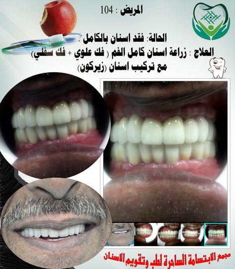 القطيف حي الجزيرة شارع القدس الدوام من الساعه8 30 صباحا إلى10 مساءا القطيف حي الجزيرة شارع القدس 0138510055 Smile Dental Dental Center Dental