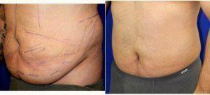 27 Jahre Alter Mann Mit Bauchdeckenstraffung Behandelt Mit Dr Robert Peterson Md Honolulu P Bauchdeckenstraffung Bauch Weg Alte Manner