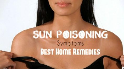 Sun Poisoning: Symptoms and Best Home Remedies - Stylish Walks