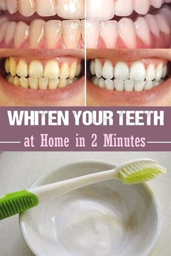 #teeth whitening kit crest,  organic #teeth whitening,  diy teeth whitening hacks that work,  teeth whitening amazon india,  true white advanced plus teeth whitening system reviews,  charcoal teeth whitening black diamond,  zoom nite white 22 teeth whitening gel instructions.