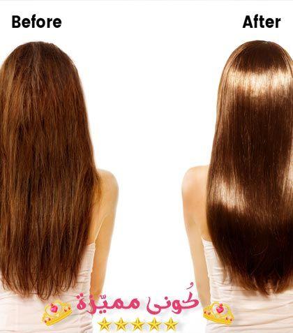 Botox Injection حقن البوتوكس علاج التجاعيد علاج الشعر بالبوتوكس Long Hair Styles Botox Injections Hair
