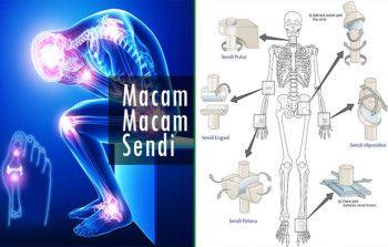 Obat nyeri otot dan sendi alami
