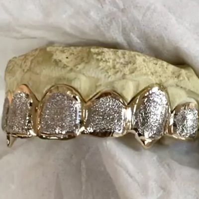 Details About Solid 10k Gold Or 14k Gold Custom Grillz 2 Tone Diamond Dust Vampire Fang Grills In 2020 Custom Grillz Grillz Gold Grillz