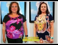 Sensa weight loss side effects