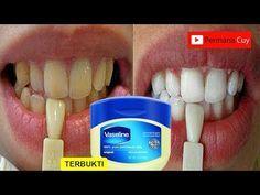 Hanya Dalam 3 Menit Gigi Kuning Menjadi Putih Bersinar Youtube Pemutih Gigi Alami Kesehatan Gigi Pemutih Gigi